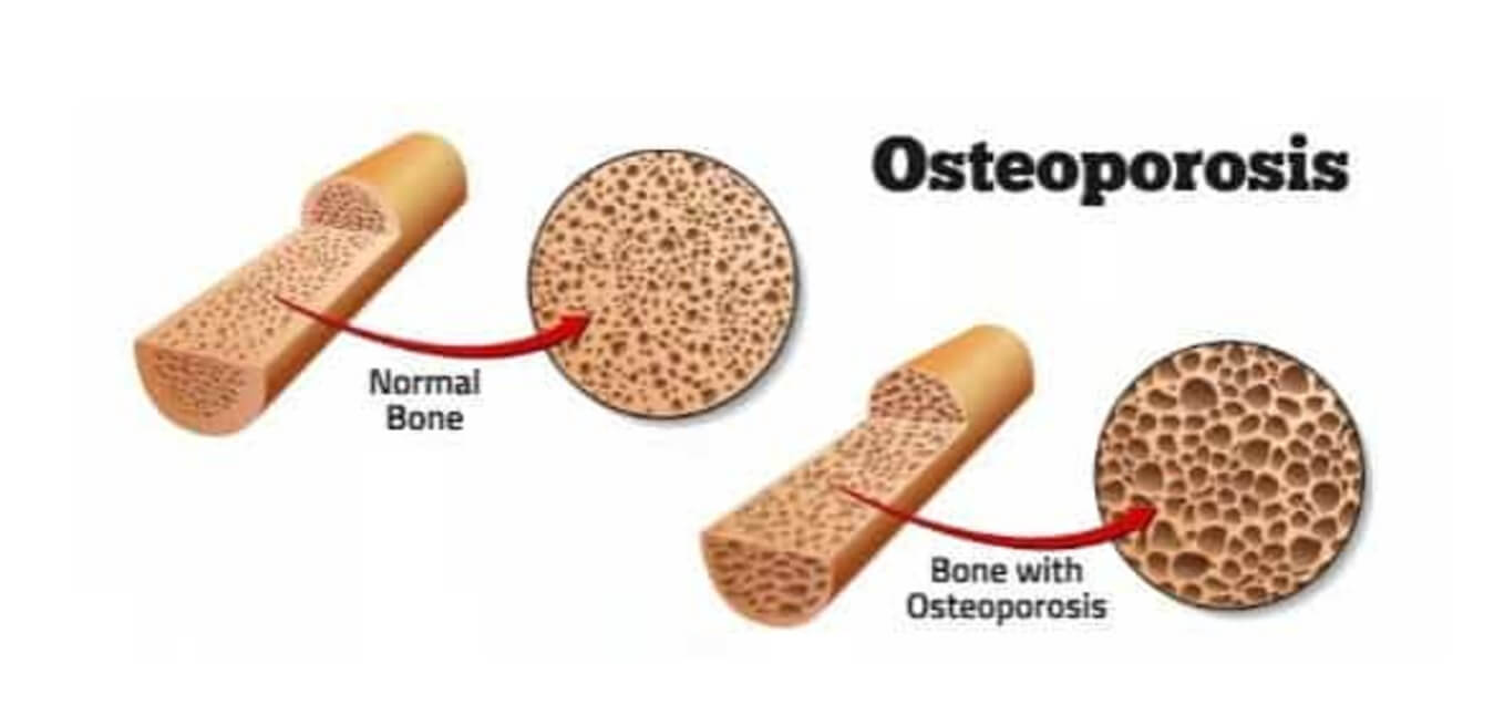 Causes Osteoporosis
