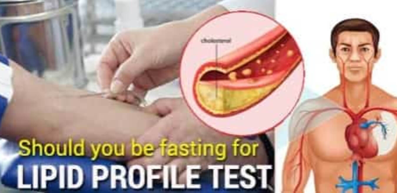 Lipid Profile Test