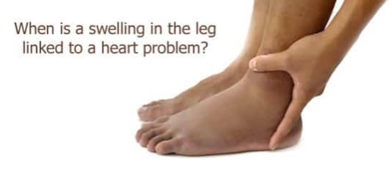 Swelling Leg
